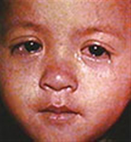 child-measles.jpg